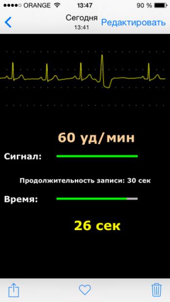 """КАРДИОГРАФ персональный / карманный """"СЕРДЕЧКО"""" ИКРЗ-1"""